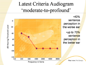 latest_criteria_audiogram_CI