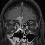 Sino-nasal tumours with extensive intracranial spread