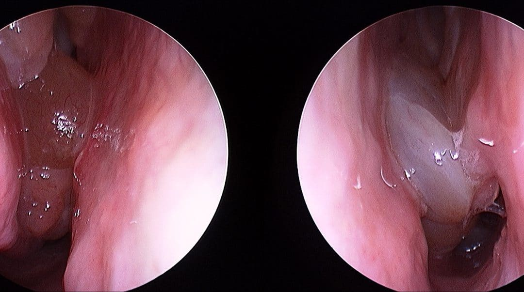 Modern treatment for nasal polyps and sinusitis