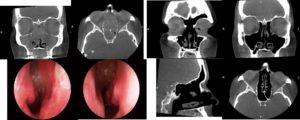 Sinus surgery nasal polyps sydney