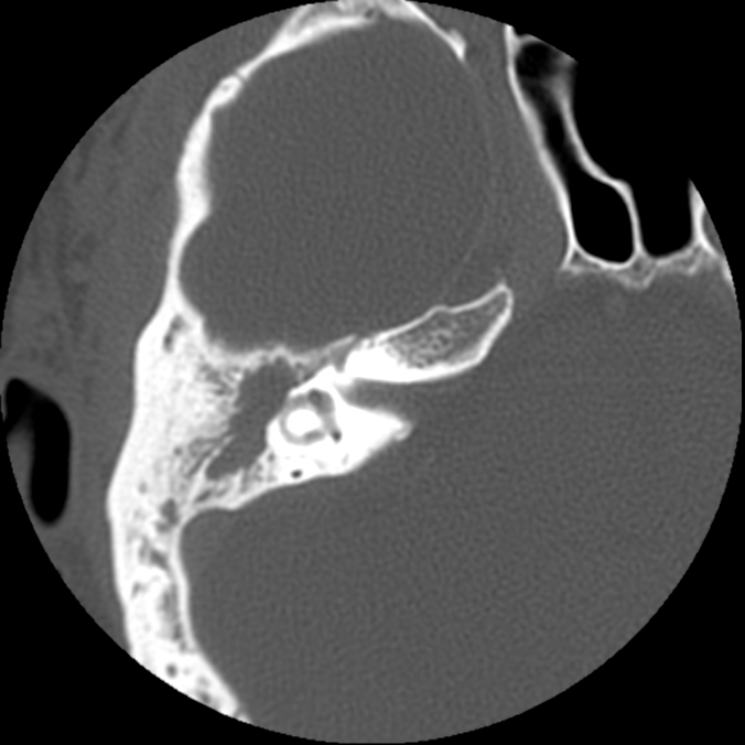 Lateral semicircular canal fistula. Axial CT scan showing widespread opacification of the middle ear cleft, with erosion of bone over the lateral semicircular canal